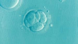Embryo Ivf Icsi Infertility